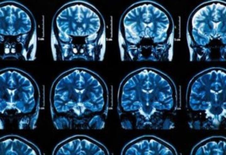 Investigación científica confirma que el uso de esteróides anabólicos envejece el cerebro