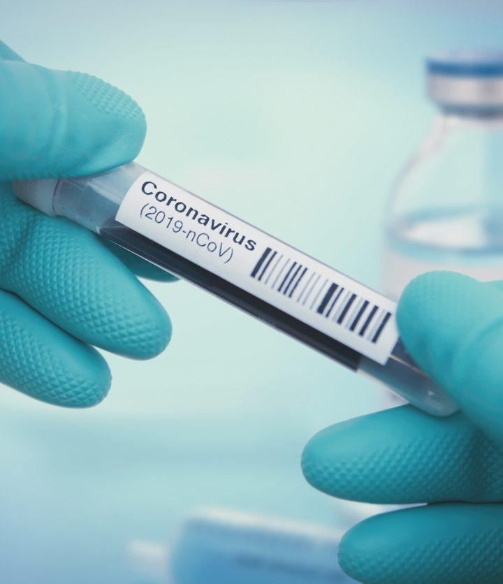 Australia preocupado por nuevas cifras de contagio por Covid19