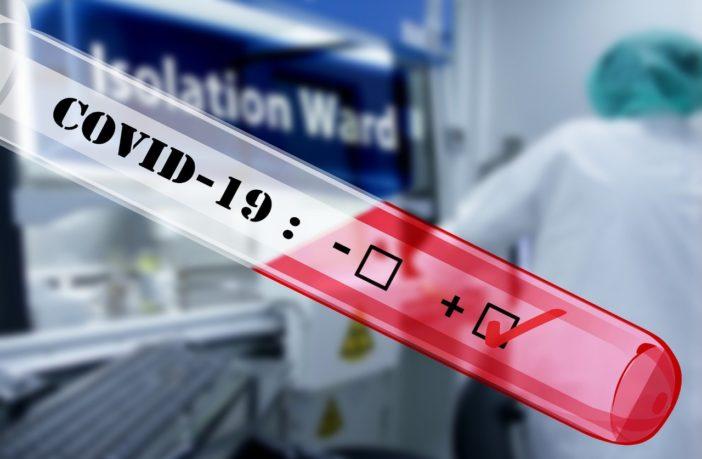 Francia deja de pagar pruebas PCR a las personas que no se han vacunado